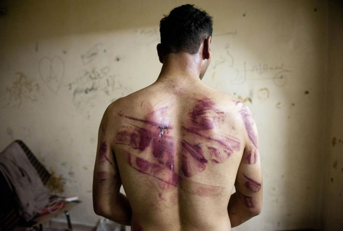 Un Syrien libéré après un séjour dans les prisons du régime montre des marques de tortures sur son dos, en août 2012 à Alep (AFP / James Lawler Duggan)